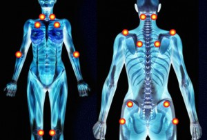 Wat is fibromyalgie2